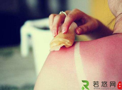 如何恢复晒后皮肤?晒后肌肤修复的方法