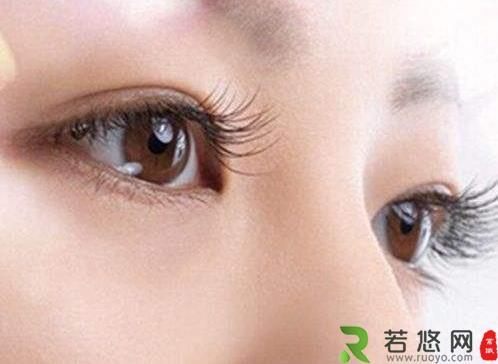 眼部整容时可能遇到的问题及存在的6大误区 动人眼眸的标准