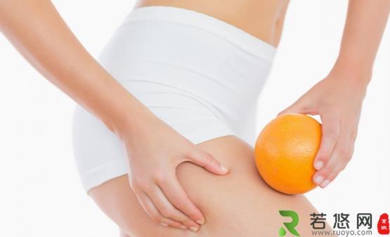 肥胖纹怎么消除 饮食合理规律作息肥胖纹也不再可怕