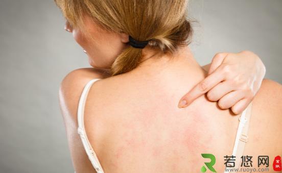 为什么后背容易长痘 可使你背部痘痘消散的小妙招