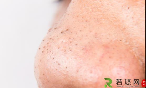 草莓鼻真的很难看影响美观 形成草莓鼻的常见原因